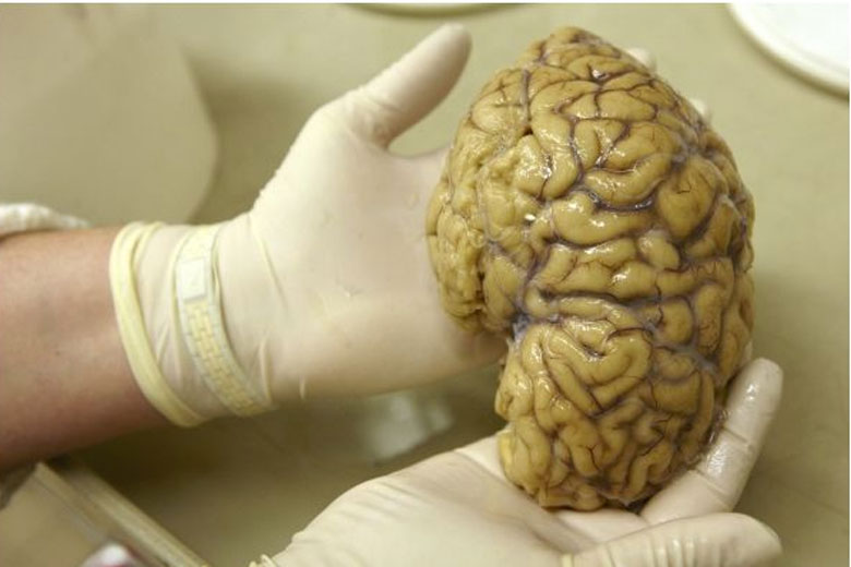 The Most Weird Archaeological Finds, A 2,500 year-old preserved human brain discovered