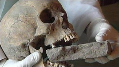 Archaeologist discovered 1,550-year-old 'vampire child' buried in Italy – Histecho