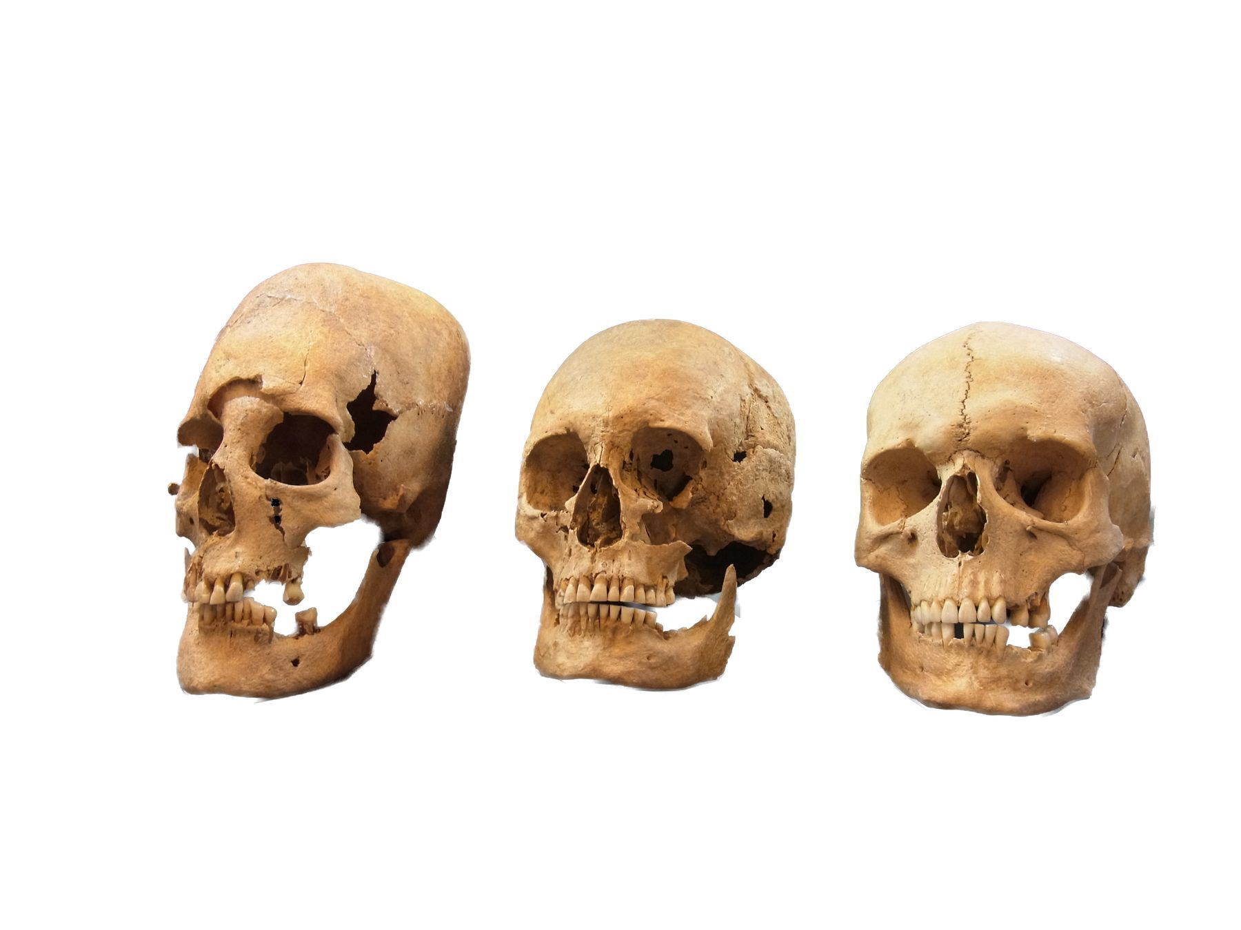 Researchers discover early medieval women with their skulls altered in Germany
