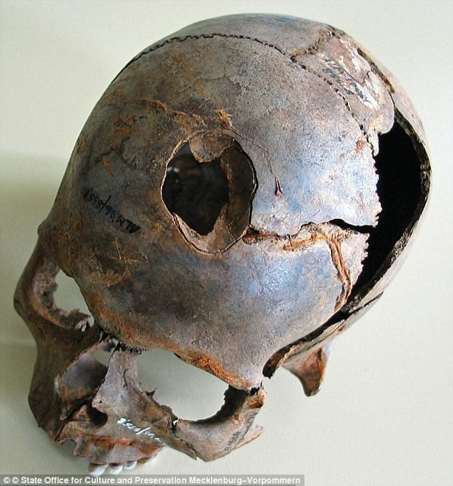 An analysis of the skeletons at the site in north-eastern Germany suggests that more than 2,000 people were involved in the battle