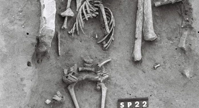 Oldest known case of Down's syndrome discovered