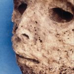Sixteenth-Century Child Diagnosed With Hepatitis B