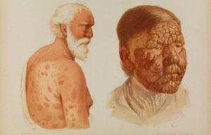Elderly male with leprosy from 1889.