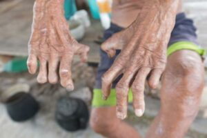 Hansen's disease, closeup of the hands of old man suffering from leprosy.