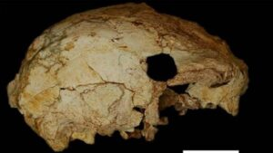Images of the skull show a circular hole, which represents the damage incurred during the excavation.