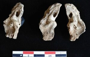 The bones are thought to be the oldest example of death by obstructed labour and the earliest known evidence of twins so far. The temporal bone (part of the skull) of 'foetus two' is shown on the left and both temporal bones of 'foetus one' are shown middle and right