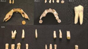 Researchers have found evidence of tooth decay among Mesolithic people